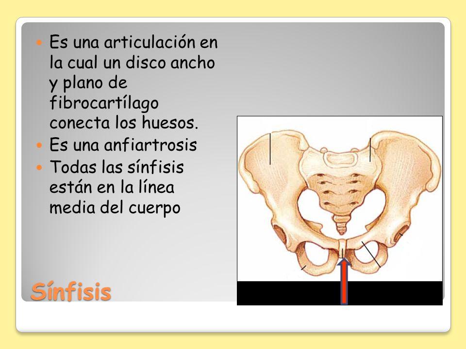 Sínfisis Es una articulación en la cual un disco ancho y plano de fibrocartílago conecta los huesos. Es una anfiartrosis Todas las sínfisis están en l