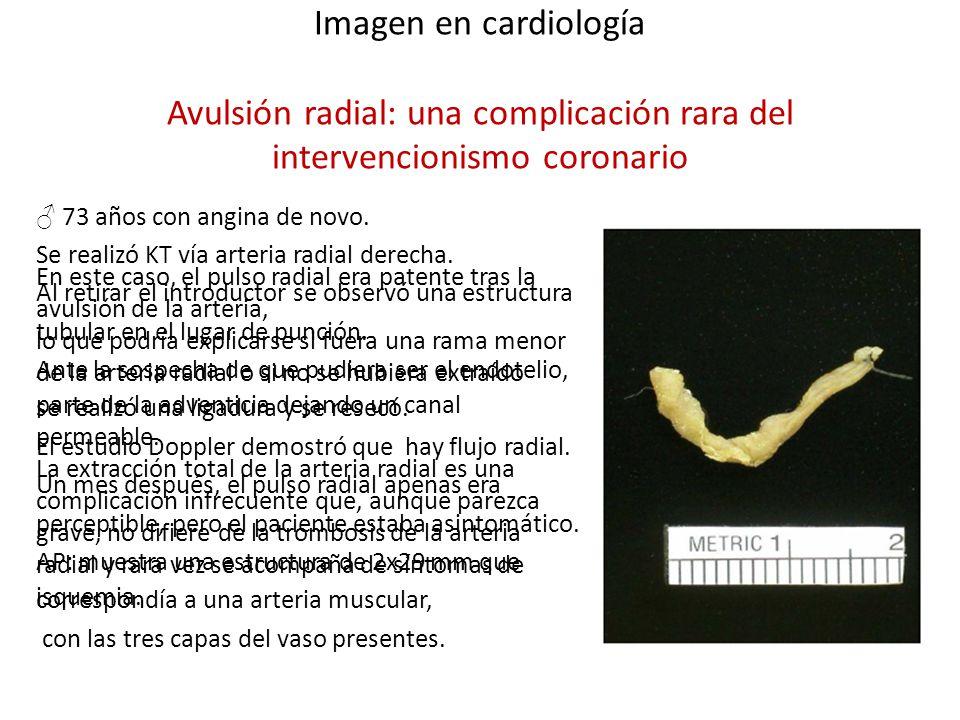 Imagen en cardiología Avulsión radial: una complicación rara del intervencionismo coronario 73 años con angina de novo. Se realizó KT vía arteria radi