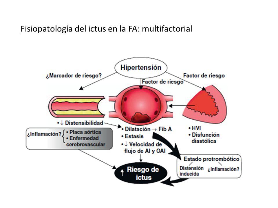 Fisiopatología del ictus en la FA: multifactorial