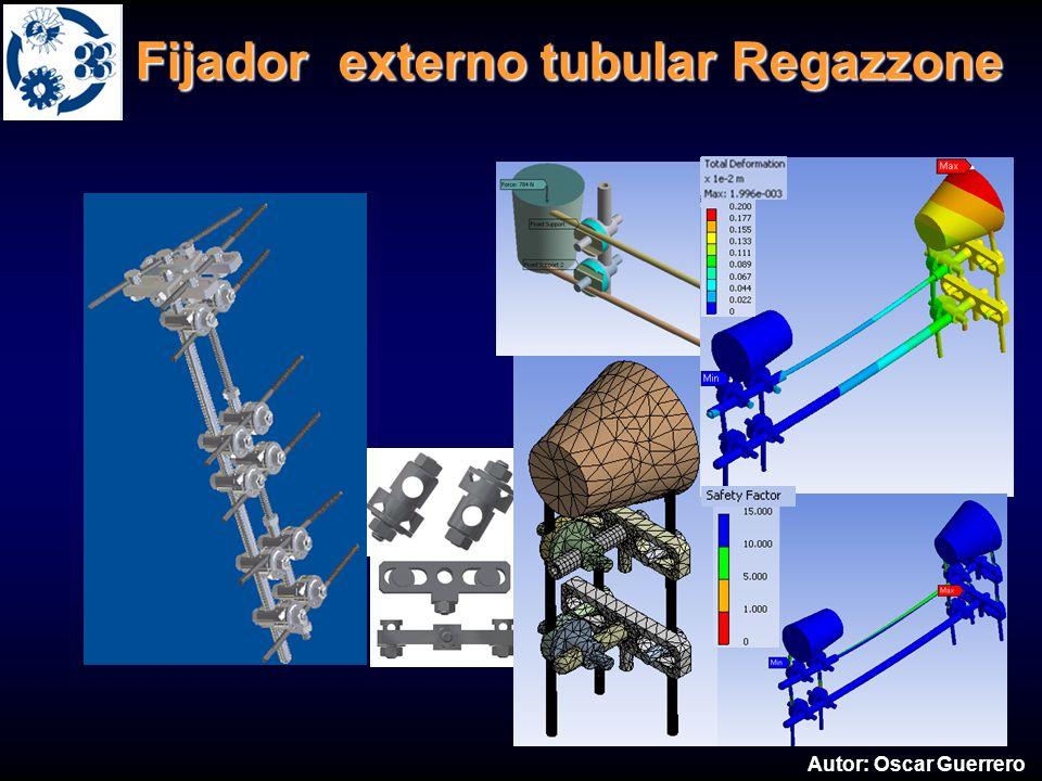 Fijador externo tubular Regazzone Fijador externo tubular Regazzone Autor: Oscar Guerrero