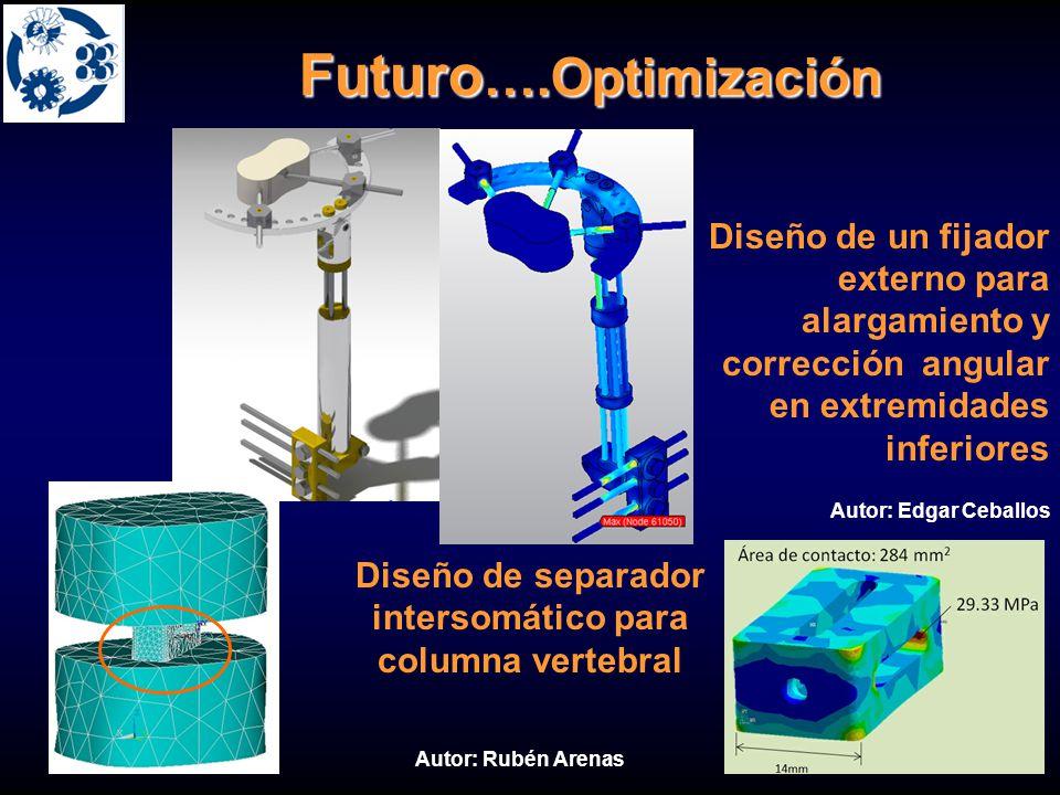 Futuro ….Optimización Diseño de un fijador externo para alargamiento y corrección angular en extremidades inferiores Diseño de separador intersomático