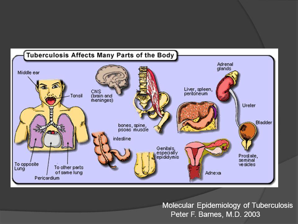 8 meses 2HRZES/1HRZE/5HRE Recaídas Falla del tratamiento principal Abandono del tratamiento inicial fourth edition of Treatment of tuberculosis: guidelines 2010 WHO