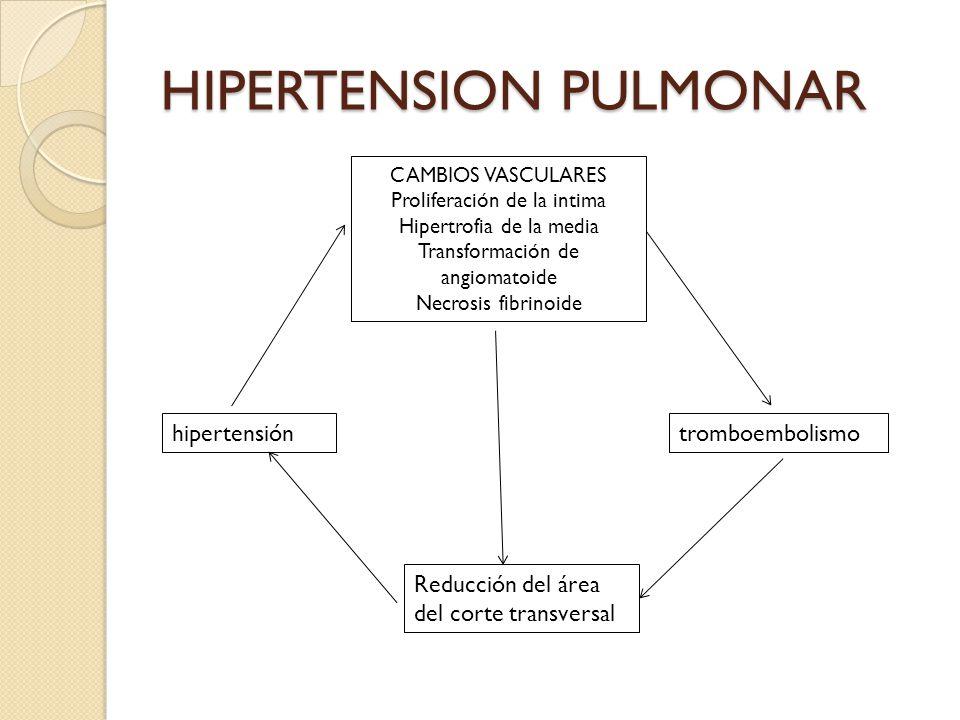 HIPERTENSION PULMONAR CAMBIOS VASCULARES Proliferación de la intima Hipertrofia de la media Transformación de angiomatoide Necrosis fibrinoide tromboe