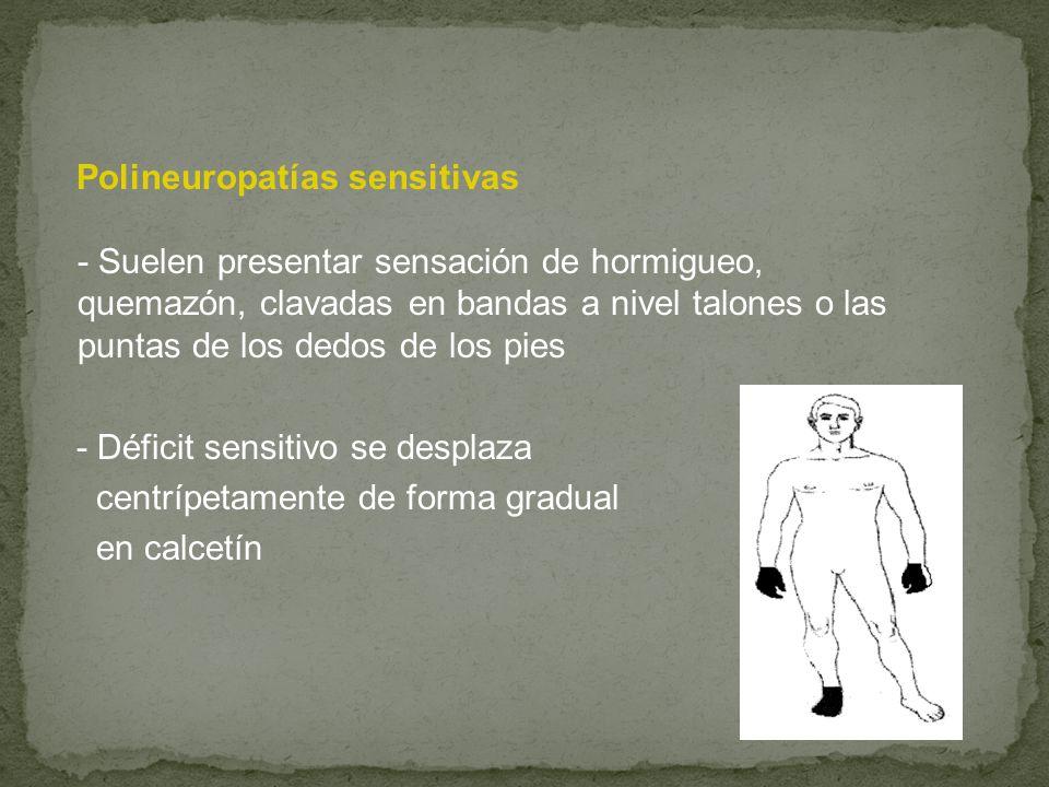 Polineuropatías sensitivas - Suelen presentar sensación de hormigueo, quemazón, clavadas en bandas a nivel talones o las puntas de los dedos de los pi