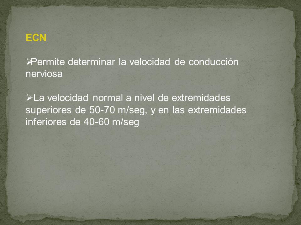 ECN Permite determinar la velocidad de conducción nerviosa La velocidad normal a nivel de extremidades superiores de 50-70 m/seg, y en las extremidade