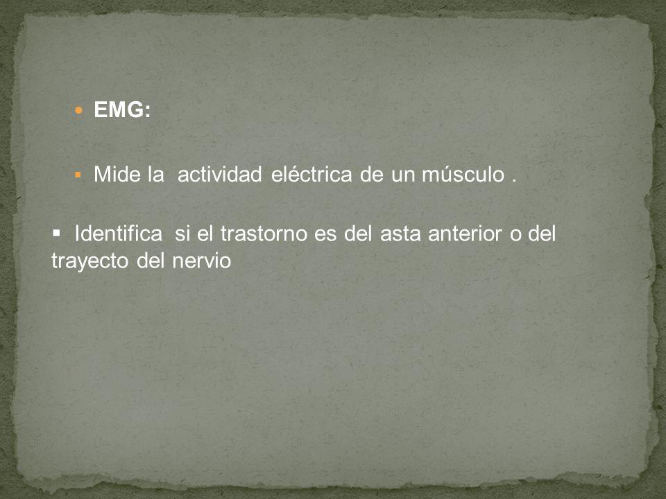 EMG: Mide la actividad eléctrica de un músculo. Identifica si el trastorno es del asta anterior o del trayecto del nervio