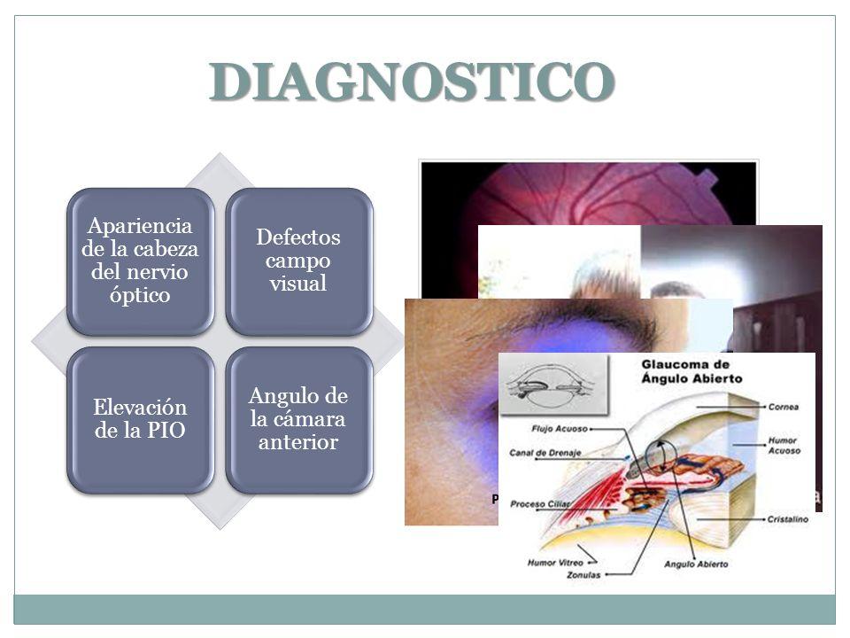 DIAGNOSTICO Apariencia de la cabeza del nervio óptico Defectos campo visual Elevación de la PIO Angulo de la cámara anterior