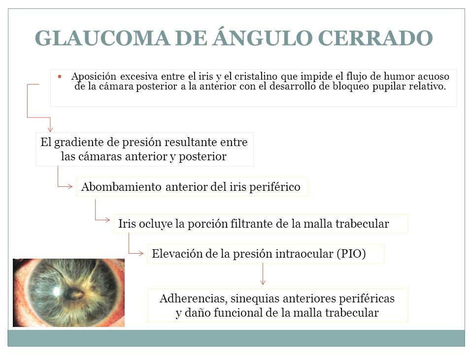 Aposición excesiva entre el iris y el cristalino que impide el flujo de humor acuoso de la cámara posterior a la anterior con el desarrollo de bloqueo pupilar relativo.