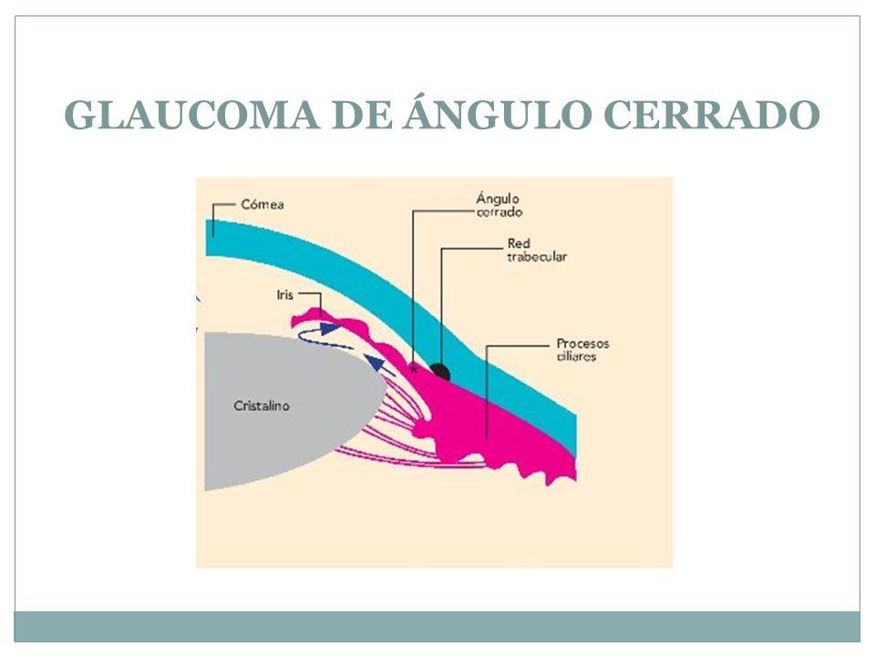 GLAUCOMA DE ÁNGULO CERRADO