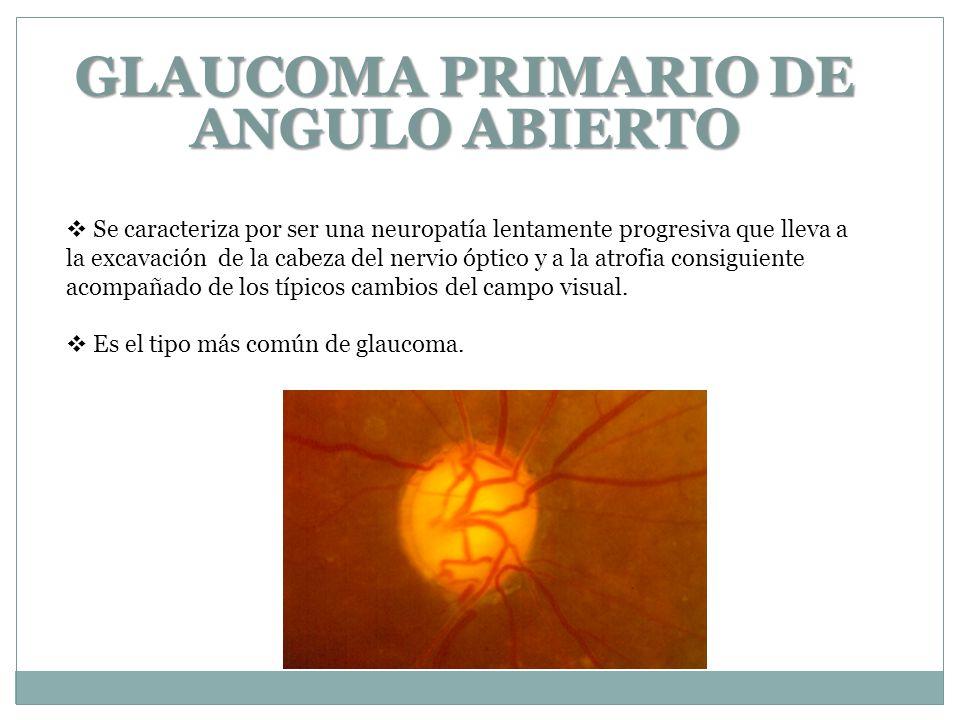 GLAUCOMA PRIMARIO DE ANGULO ABIERTO Se caracteriza por ser una neuropatía lentamente progresiva que lleva a la excavación de la cabeza del nervio óptico y a la atrofia consiguiente acompañado de los típicos cambios del campo visual.