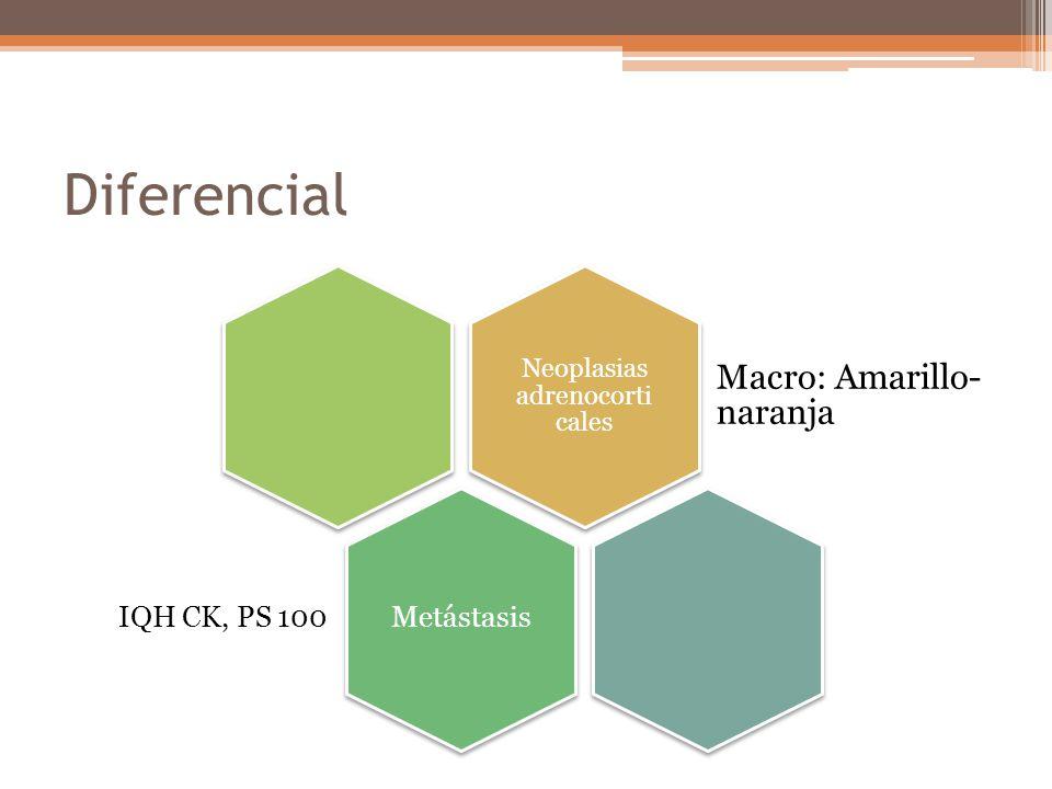 Diferencial Neoplasias adrenocorti cales Macro: Amarillo- naranja Metástasis IQH CK, PS 100
