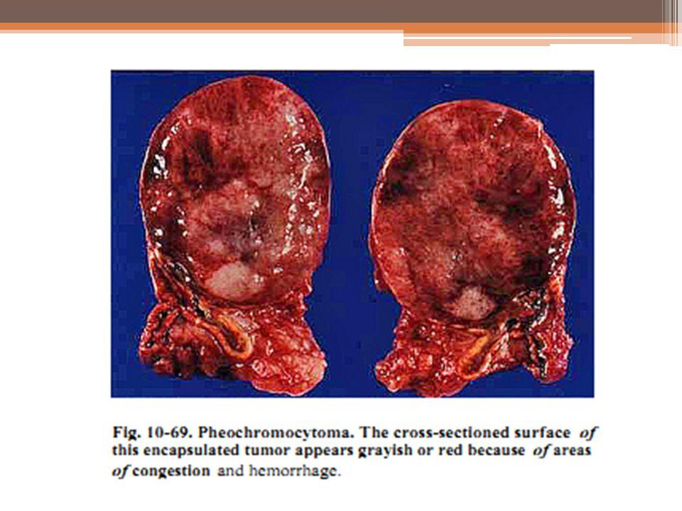 Variables Edad Sexo Localización Tamaño Patrón histológico Necrosis tumoral IHQ