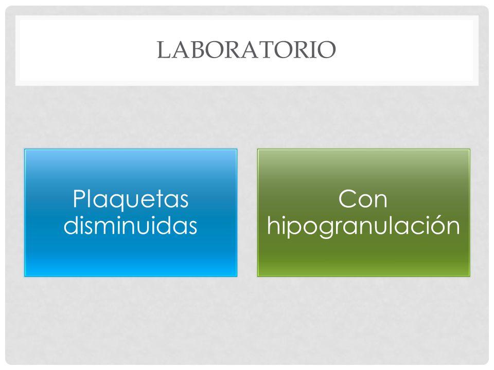 LABORATORIO Plaquetas disminuidas Con hipogranulación
