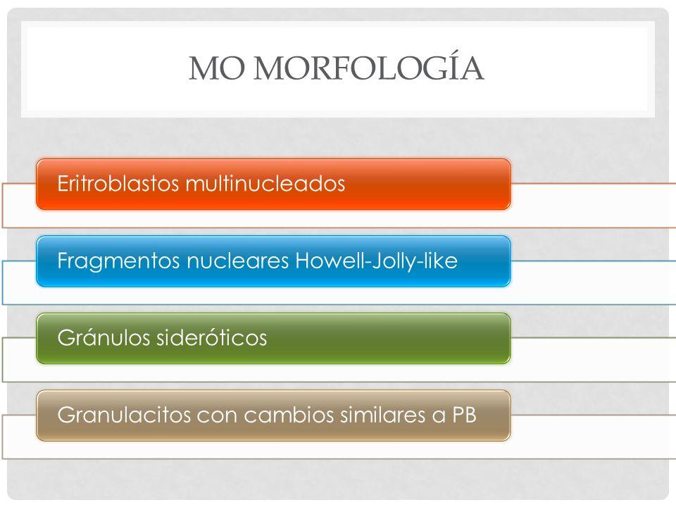MO MORFOLOGÍA Eritroblastos multinucleados Fragmentos nucleares Howell-Jolly-like Gránulos sideróticos Granulacitos con cambios similares a PB