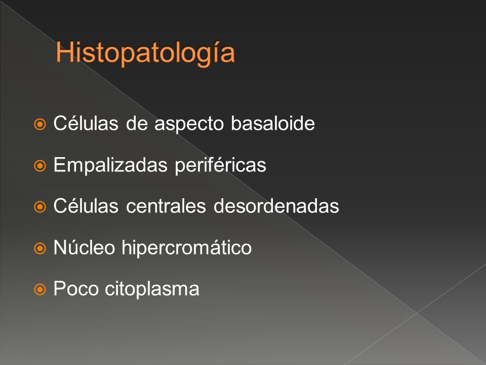 Células de aspecto basaloide Empalizadas periféricas Células centrales desordenadas Núcleo hipercromático Poco citoplasma
