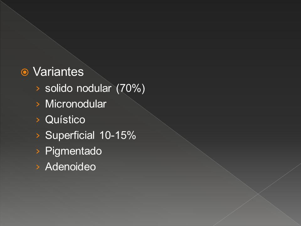 Variantes solido nodular (70%) Micronodular Quístico Superficial 10-15% Pigmentado Adenoideo