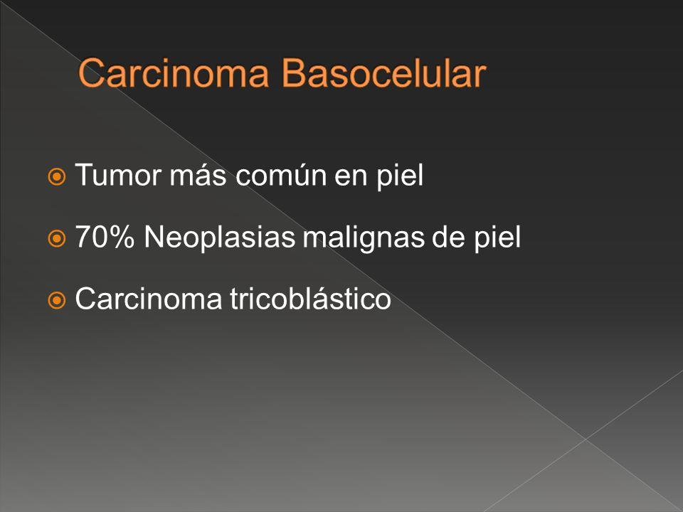 Tumor más común en piel 70% Neoplasias malignas de piel Carcinoma tricoblástico