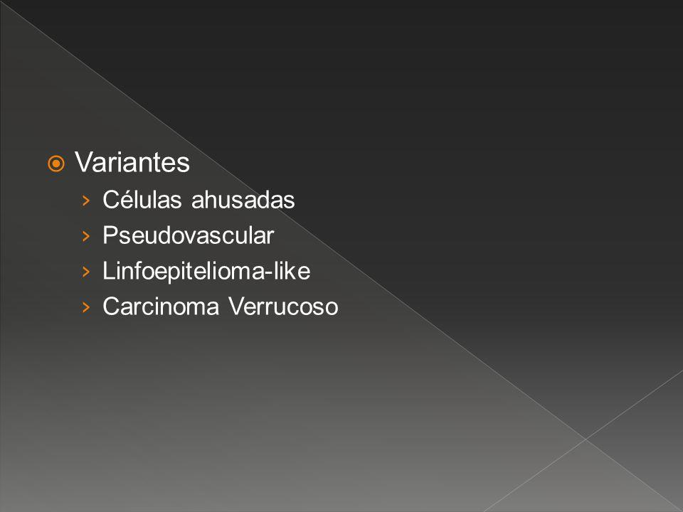Variantes Células ahusadas Pseudovascular Linfoepitelioma-like Carcinoma Verrucoso