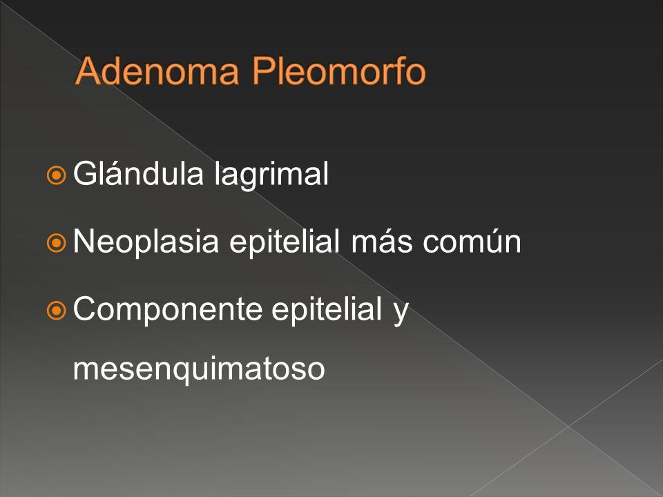 Glándula lagrimal Neoplasia epitelial más común Componente epitelial y mesenquimatoso