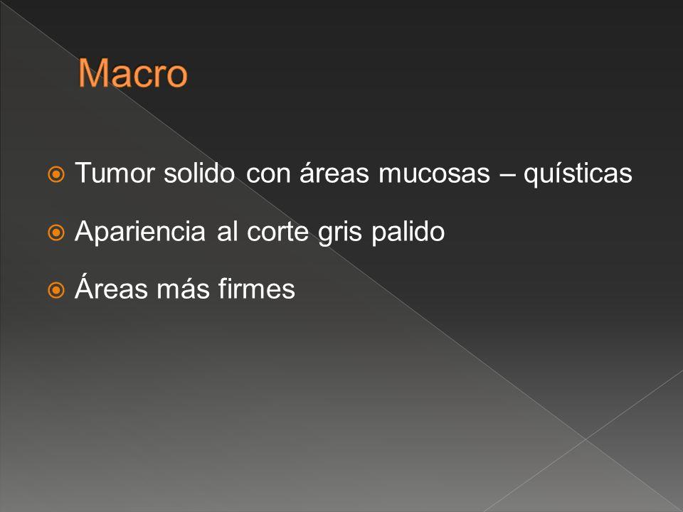 Tumor solido con áreas mucosas – quísticas Apariencia al corte gris palido Áreas más firmes