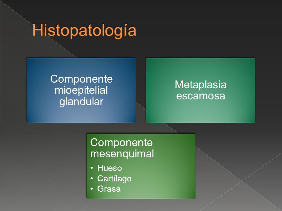 Componente mioepitelial glandular Metaplasia escamosa Componente mesenquimal Hueso Cartílago Grasa
