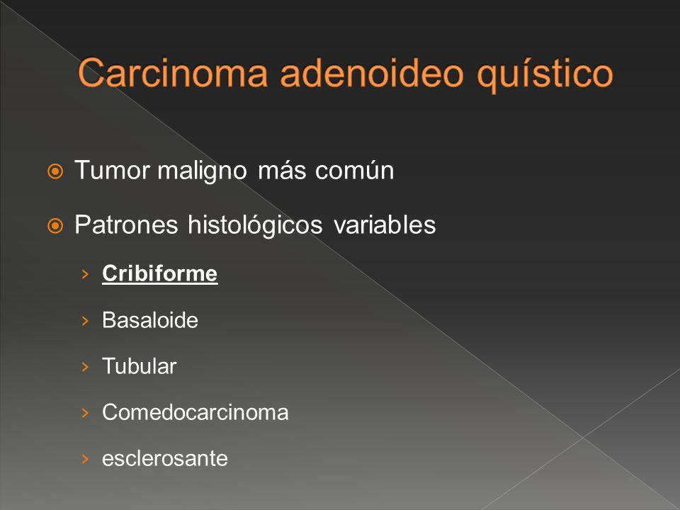 Tumor maligno más común Patrones histológicos variables Cribiforme Basaloide Tubular Comedocarcinoma esclerosante
