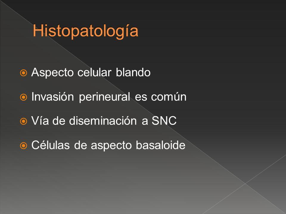 Aspecto celular blando Invasión perineural es común Vía de diseminación a SNC Células de aspecto basaloide