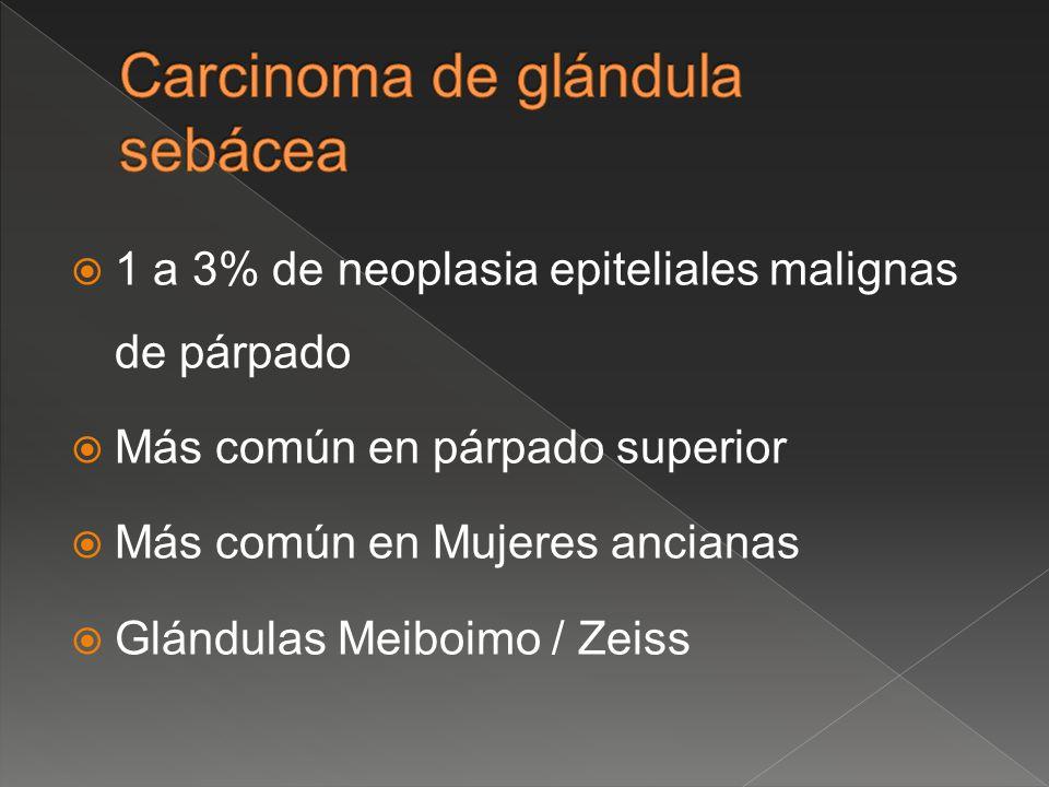 1 a 3% de neoplasia epiteliales malignas de párpado Más común en párpado superior Más común en Mujeres ancianas Glándulas Meiboimo / Zeiss
