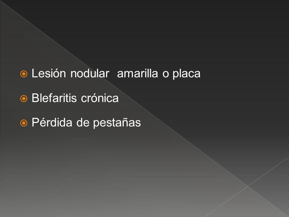 Lesión nodular amarilla o placa Blefaritis crónica Pérdida de pestañas