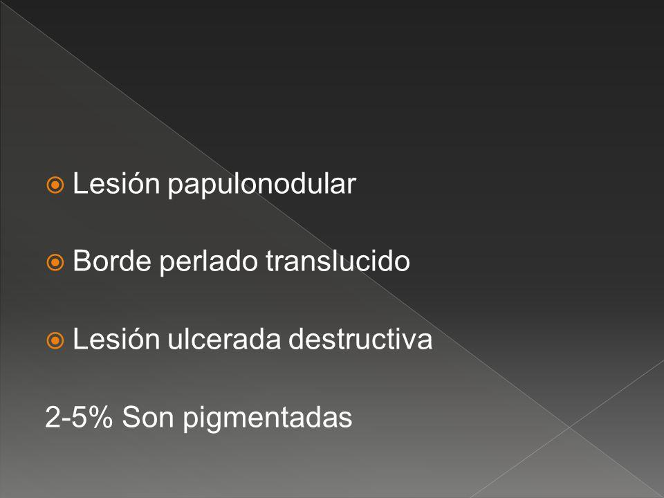 Lesión papulonodular Borde perlado translucido Lesión ulcerada destructiva 2-5% Son pigmentadas