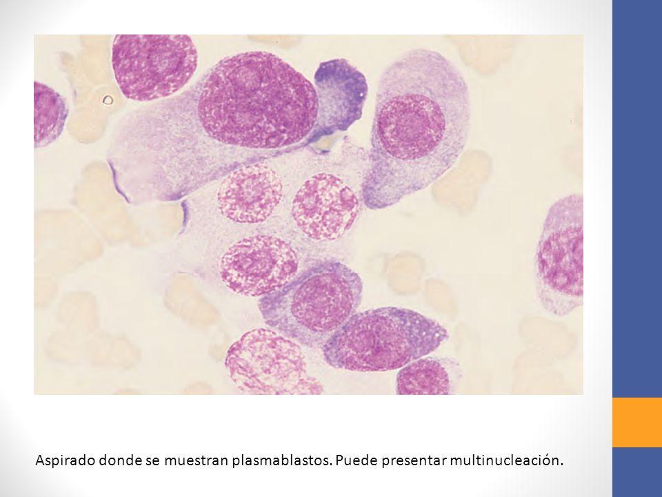 Aspirado donde se muestran plasmablastos. Puede presentar multinucleación.