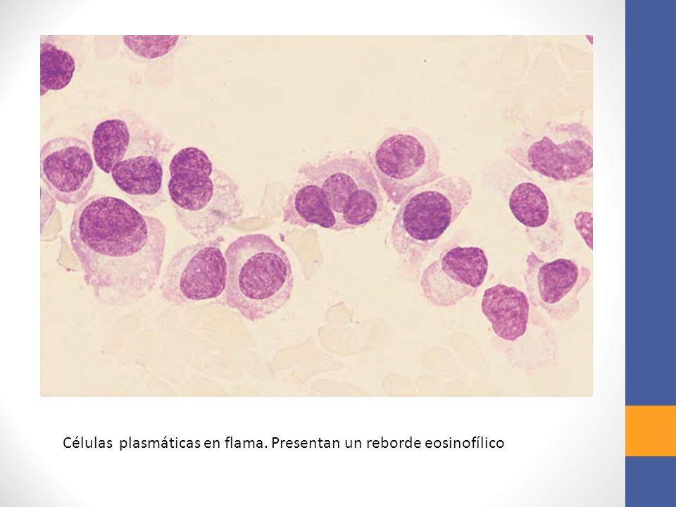 Células plasmáticas en flama. Presentan un reborde eosinofílico