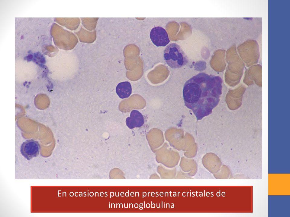 En ocasiones pueden presentar cristales de inmunoglobulina