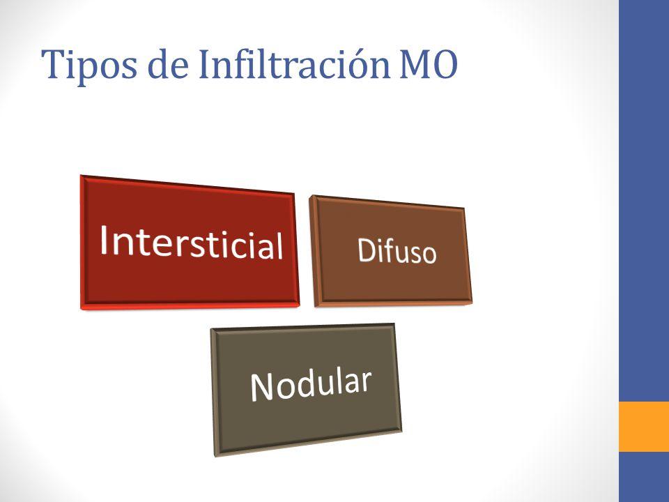 Tipos de Infiltración MO