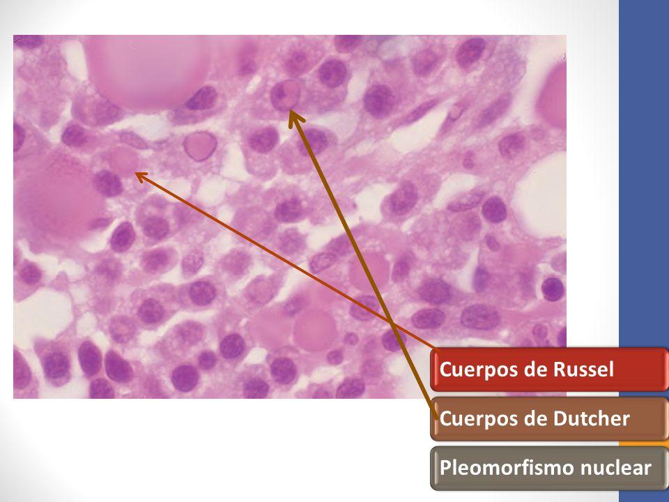 Cuerpos de RusselCuerpos de DutcherPleomorfismo nuclear