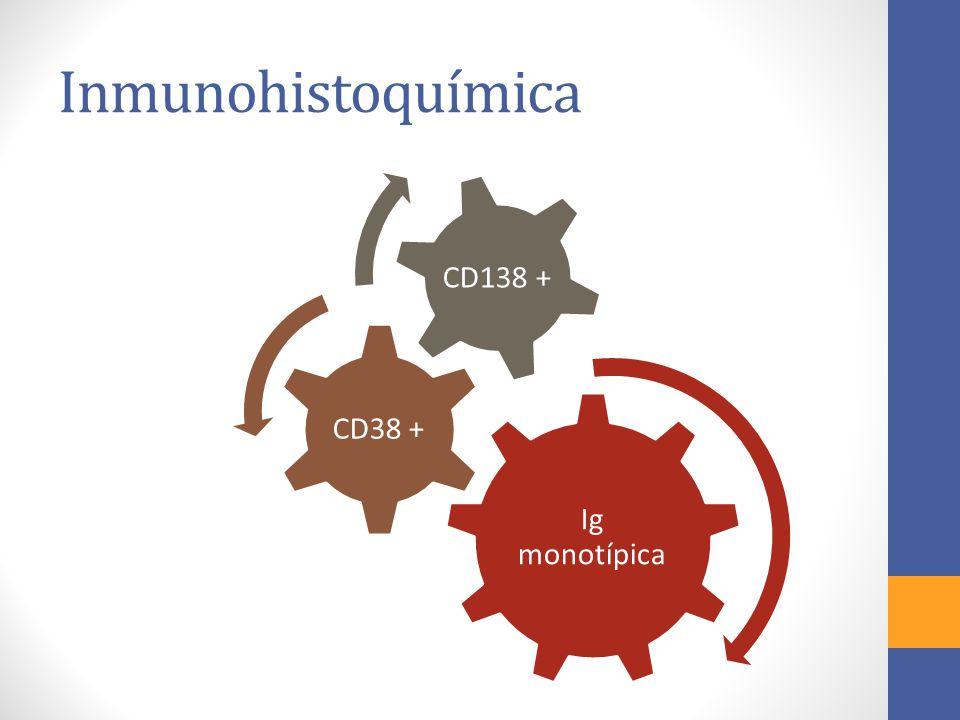 Inmunohistoquímica Ig monotípica CD38 + CD138 +