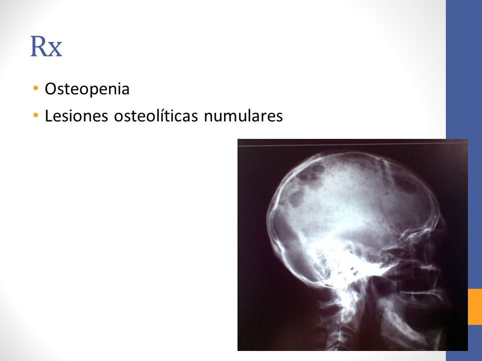 Rx Osteopenia Lesiones osteolíticas numulares