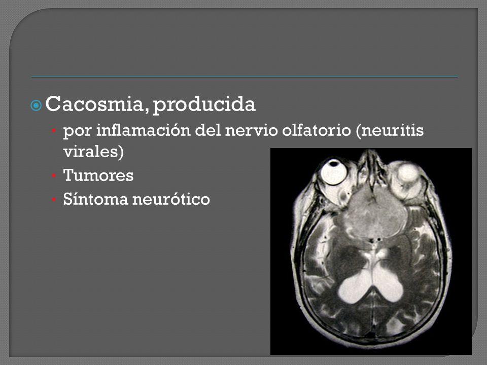 Cacosmia, producida por inflamación del nervio olfatorio (neuritis virales) Tumores Síntoma neurótico