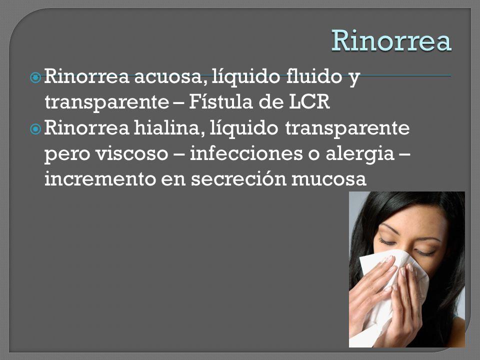 Rinorrea acuosa, líquido fluido y transparente – Fístula de LCR Rinorrea hialina, líquido transparente pero viscoso – infecciones o alergia – incremento en secreción mucosa