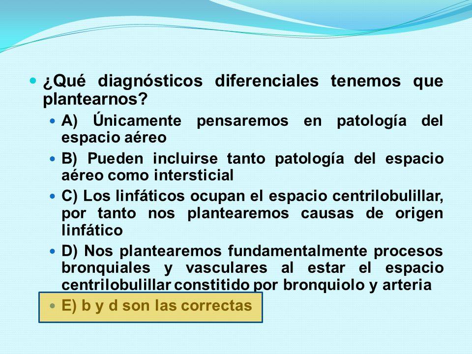 DIAGNÓSTICO DIFERENCIAL de los NÓDULOS PEQUEÑOS SIN Nódulos pleurales CENTRILOBULILLARES CON Árbol en brote: Patología bronquiolar INFECCIOSA Diseminación endobronquial de infección TBC / Micobacterias, Fibrosis quística, ABPA, Panbronquiolitis Bronquiolitis obliterante Asma Tumor endobronquial SIN Árbol en brote: Patología BRONQUIOLAR y VASCULAR Las mismas que con árbol en brote, Neumonía por hipersensibilidsd, Bronquiolitis respiratoria, BOOP, Neumoconiosis, Histitocitosis, Edema pulmonar, Vasculitis CON Nódulos pleurales PERILINFATICA Sarcoidosis, Linfangitis carcinomatosa, silicosis y Neumoconiosis de los mineros ALEATORIA : TBC miliar, Infección por hongos, Metástasis hematógenas