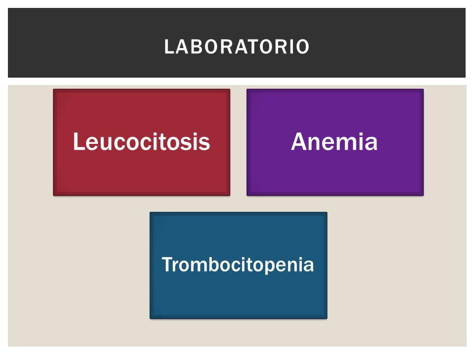LeucocitosisAnemia Trombocitopenia LABORATORIO