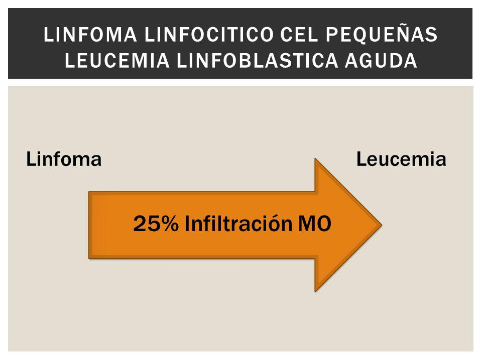25% Infiltración MO LINFOMA LINFOCITICO CEL PEQUEÑAS LEUCEMIA LINFOBLASTICA AGUDA LinfomaLeucemia