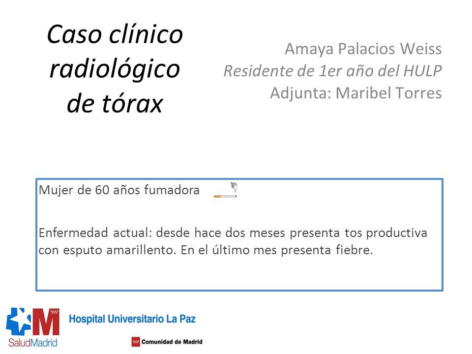 Caso clínico radiológico de tórax Amaya Palacios Weiss Residente de 1er año del HULP Adjunta: Maribel Torres Mujer de 60 años fumadora Enfermedad actu