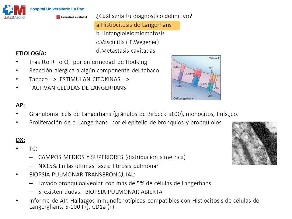 ¿Cuál sería tu diagnóstico definitivo? a.Histiocitosis de Langerhans b.Linfangioleiomiomatosis c.Vasculitis ( E.Wegener) d.Metástasis cavitadas ETIOLO