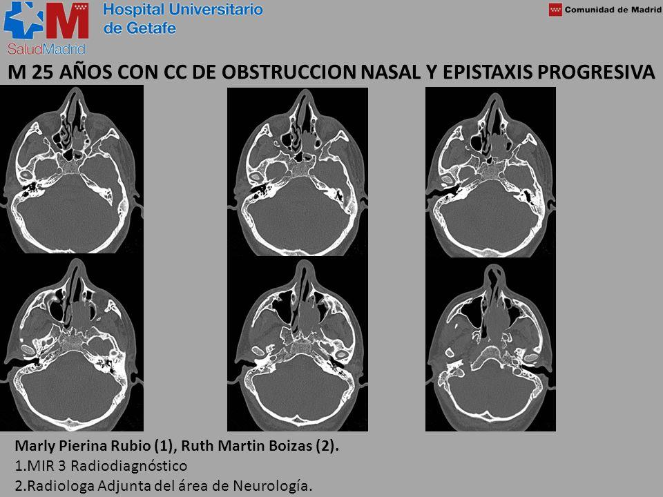 M 25 AÑOS CON CC DE OBSTRUCCION NASAL Y EPISTAXIS PROGRESIVA Marly Pierina Rubio (1), Ruth Martin Boizas (2). 1.MIR 3 Radiodiagnóstico 2.Radiologa Adj