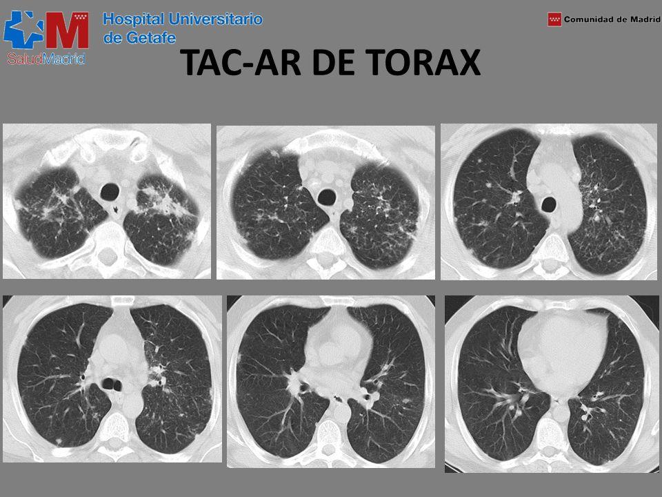 TAC-AR DE TORAX