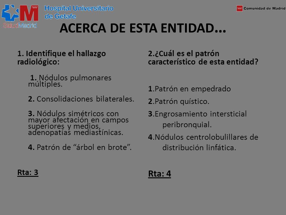 ACERCA DE ESTA ENTIDAD … 1. Identifique el hallazgo radiológico: 1. Nódulos pulmonares múltiples. 2. Consolidaciones bilaterales. 3. Nódulos simétrico
