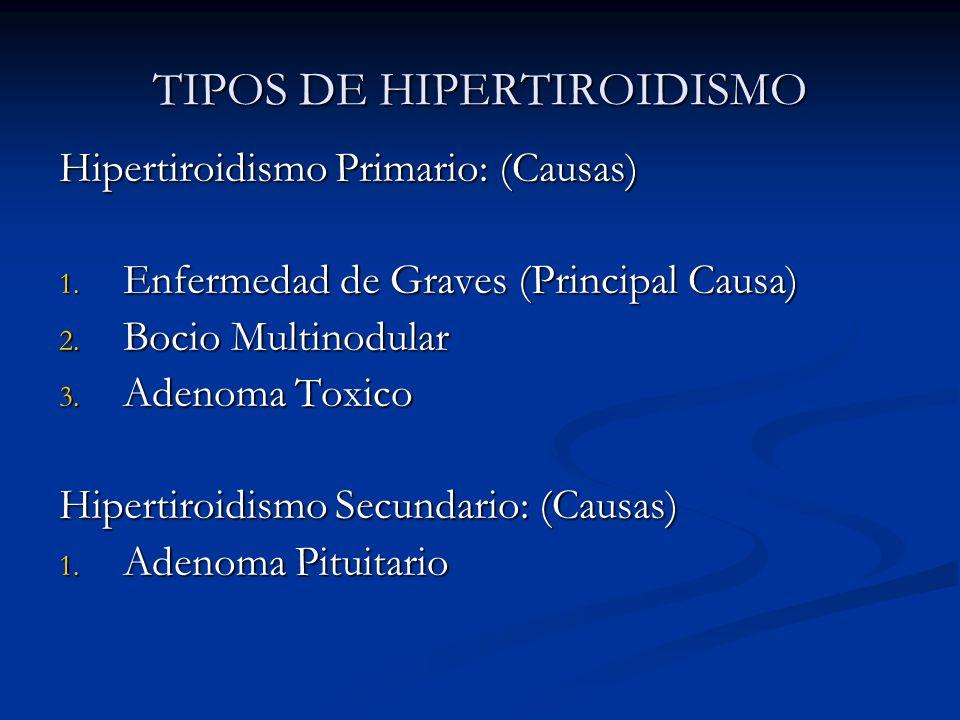 TIPOS DE HIPERTIROIDISMO Hipertiroidismo Primario: (Causas) 1. Enfermedad de Graves (Principal Causa) 2. Bocio Multinodular 3. Adenoma Toxico Hipertir