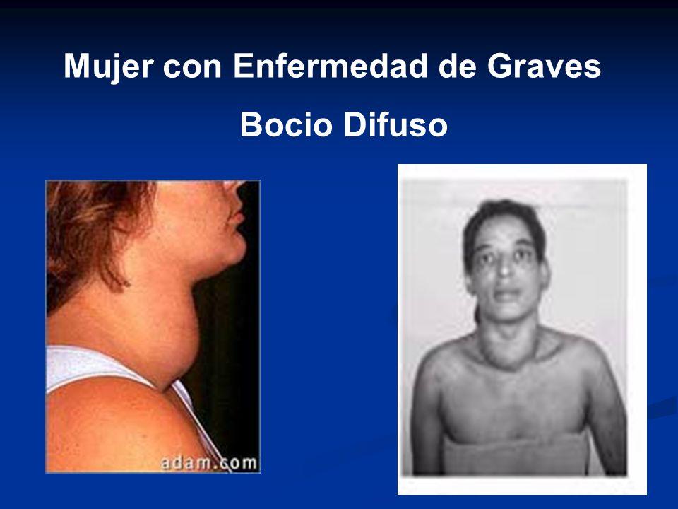 Mujer con Enfermedad de Graves Bocio Difuso