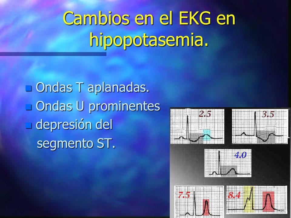 Cambios en el EKG en hipopotasemia. n Ondas T aplanadas. n Ondas U prominentes n depresión del segmento ST. segmento ST.